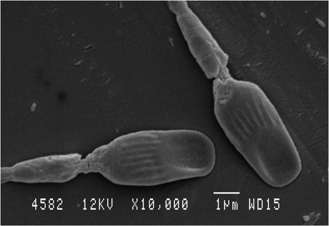 Efecto de la temperatura y la concentración celular en la calidad de los espermatozoides del delfín (Tursiops truncatus) evaluada en diferentes días de refrigeración por Marí Carmen Fuentes